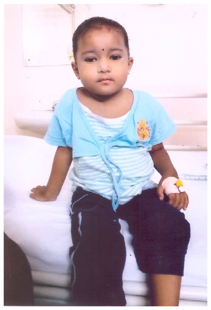 Help baby Gayathri Bone Marrow Transplantation